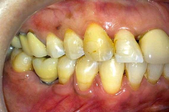 Dental-implant-2(b)