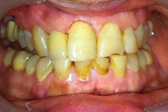 Dental-implant-3(b)