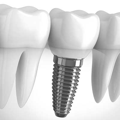 dental-implant-img