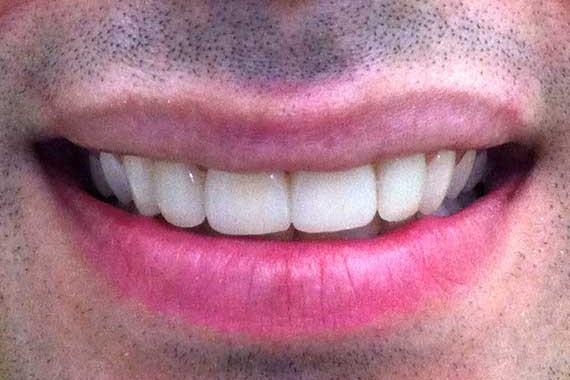 smile-makeover-1(b)