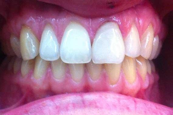 smile-makeover-2(b)