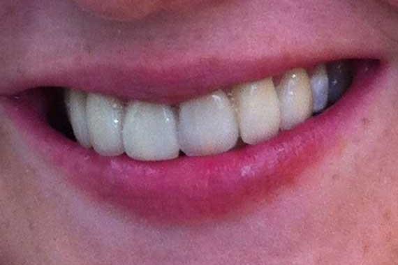 smile-makeover-3(b)
