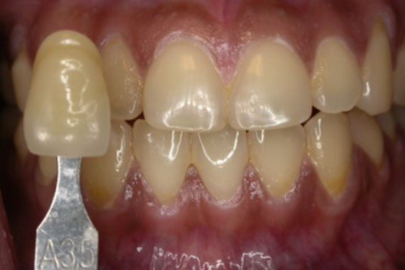 teeth-whitening-3a
