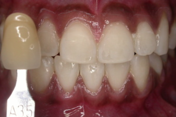 teeth-whitening-3(b)