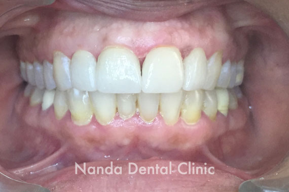 dental_after65