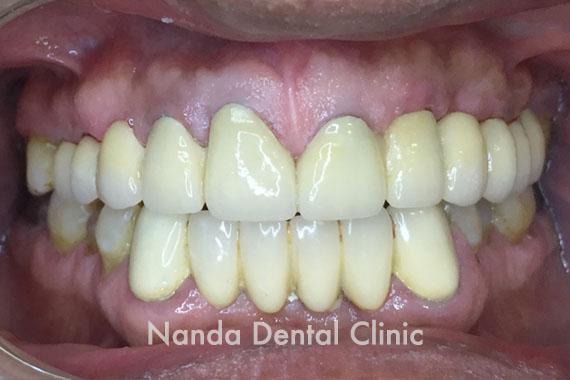 dentalimplant2