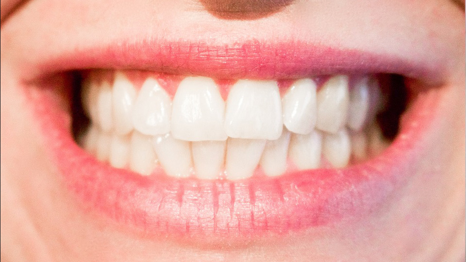 tooth-366335_960_720-1