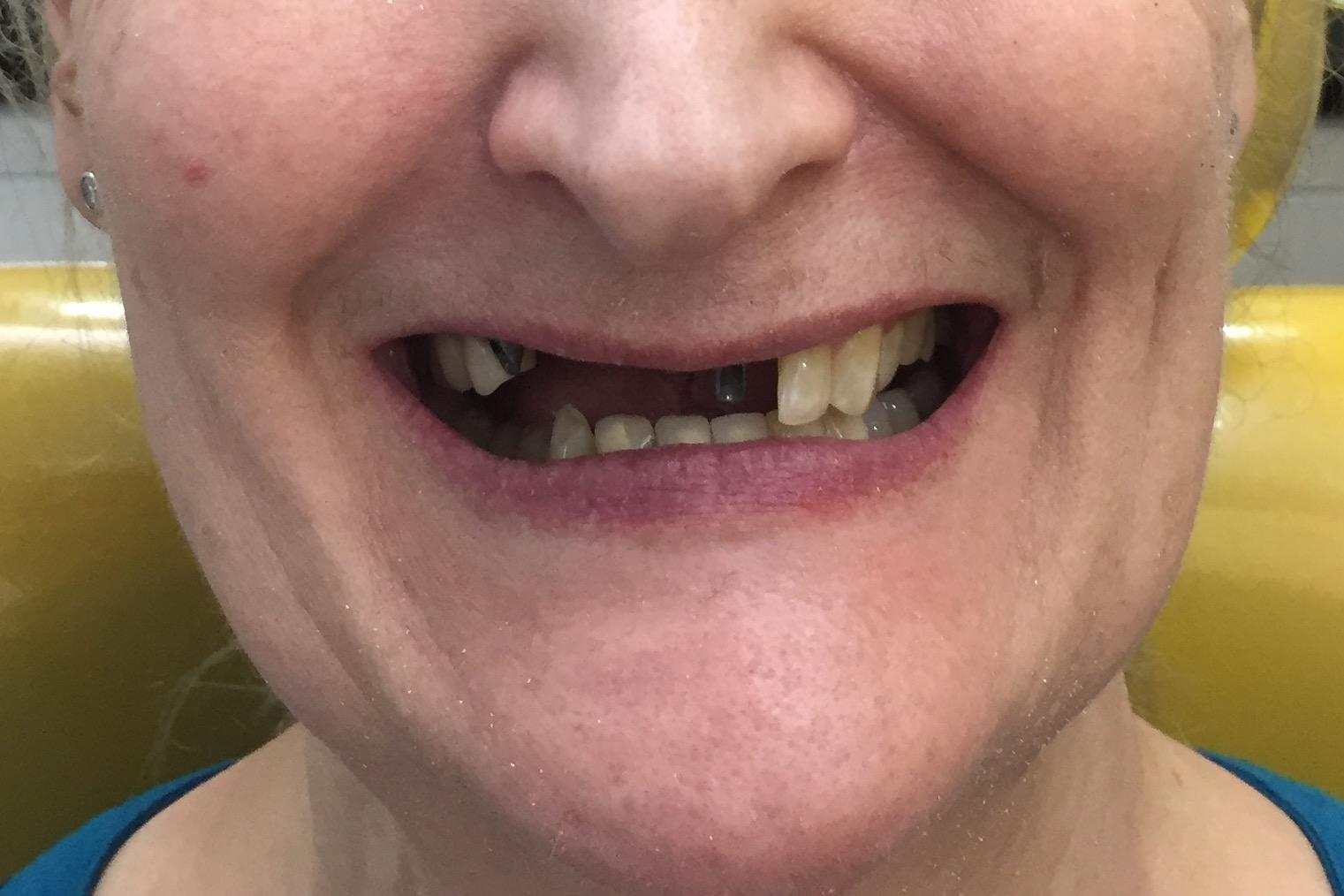 dentalimpant2
