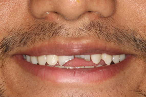 smilemakeover45