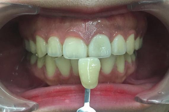 teeth_whbefore