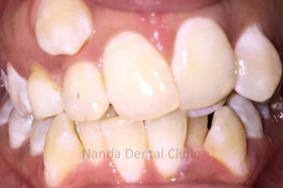 orthodonticsbraces1