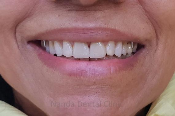 smile-makeover15n