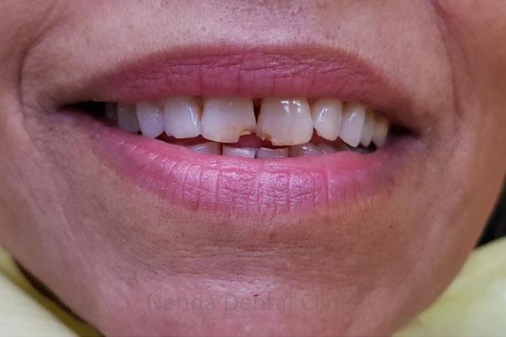 smile-makeover15o